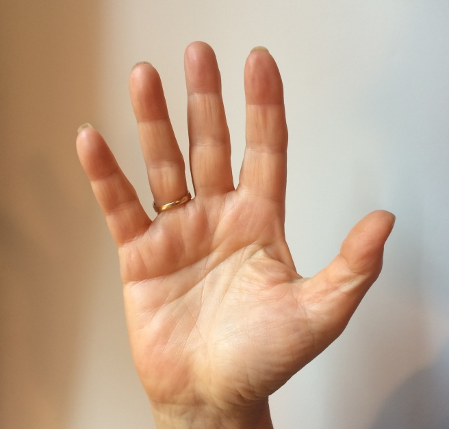 Marian Rivman's right palm