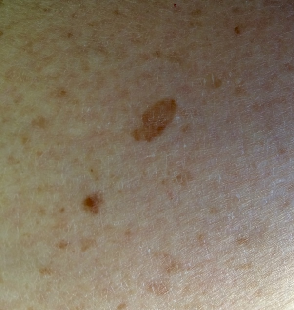 Seborrheic keratoses - a common skin growth.